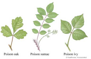 UHS Health Topic - Poison Ivy, Oak and Sumac